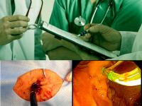 CPRE transgástrica em cirurgia bariátrica (bypass)