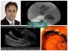 Coledocoduodenostomia ecoguiada: um procedimento endoscópico-cirúrgico