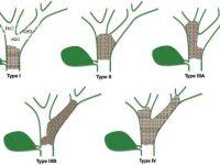 Classificação de Bismuth-Corlette – Tumores Hilares