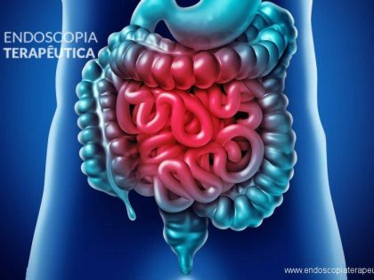 Hemorragia digestiva média