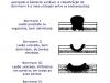 Borrmann – Câncer gástrico avançado