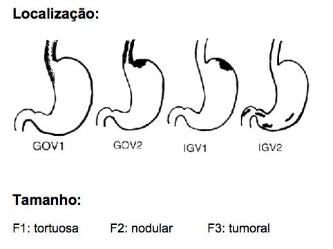 varicoza varicoză subcutanată este tratată