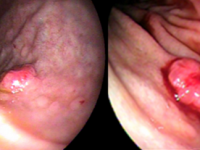 Tumor Neuroendócrino Gástrico