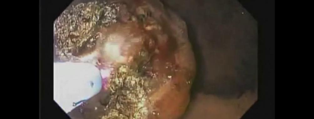Hemorragia Digestiva Alta de Tumor Metastático em Estômago