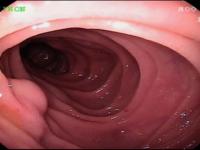 Qual o diagnóstico desta lesão duodenal?