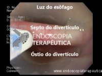 Diverticulotomia endoscópica do Zenker