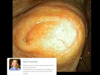Qual seria a sua hipótese diagnóstica para este achado no ceco?