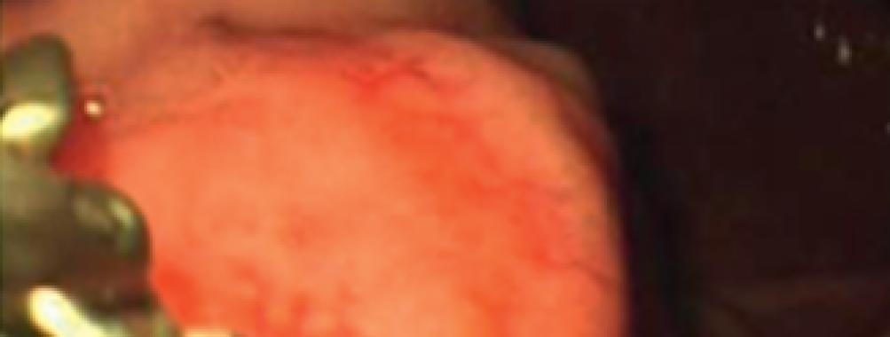 Tratamento de tumor neuroendócrino gástrico