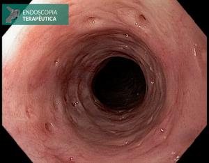 gastrectomia total por neoplasia gástrica imagem 1