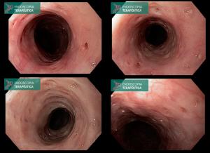 gastrectomia total por neoplasia gástrica imagem 2