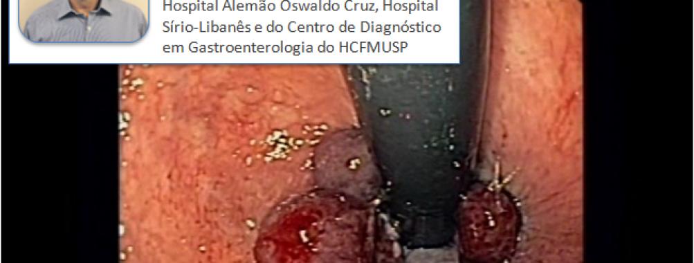 Ligadura elástica de hemorróidas