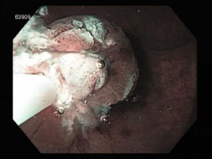 Como remover pólipos e lesões planas do cólon? Mucosectomia convencional (EMR) vs. underwater EMR