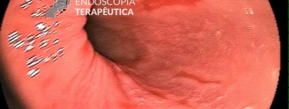QUIZ – Esofagite: Quando realizar biópsias?