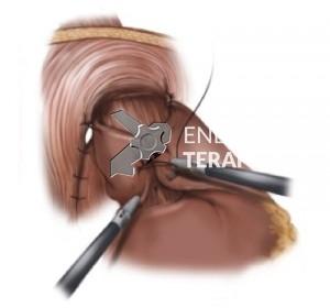 FPL cirurgia