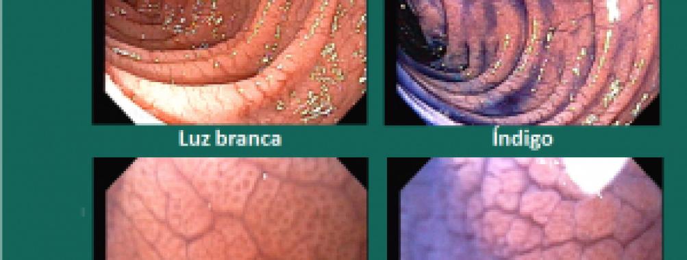 Achado na segunda porção duodenal. Qual o diagnóstico?