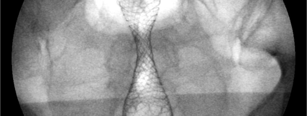 Uso de prótese metálica no câncer colorretal
