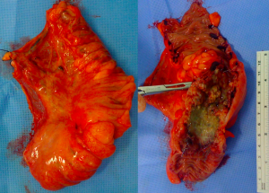 Produto de retossigmoidectomia. Peça aberta com prótese exposta