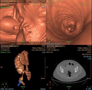 Colonografia por tomografia. a) diminuto pólipo de cólon; b) prótese expandida no segmento estenosado; c) reconstrução 3D; d) TC convencional
