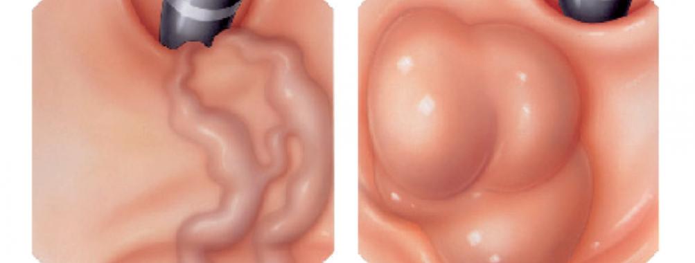 Tratamento endoscópico de varizes de fundo gástrico