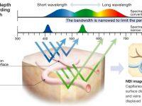 Padrão de alças capilares intrapapilares (IPCLs) avaliadas através do NBI