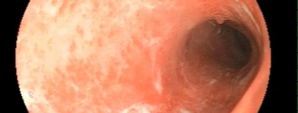 Complicações em Retocolite Ulcerativa