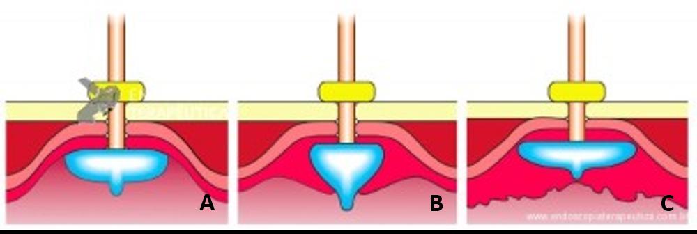 A: Sonda de GTT com posicionamento adequado. B: Sonda localizada na submucosa gástrica, anteparo parcialmente visível, classificação II de Richter-Schrag. C: Sonda localizada na submucosa gástrica, anteparo não visível, classificação III de Richter-Schrag.