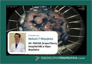 Nelson Capa