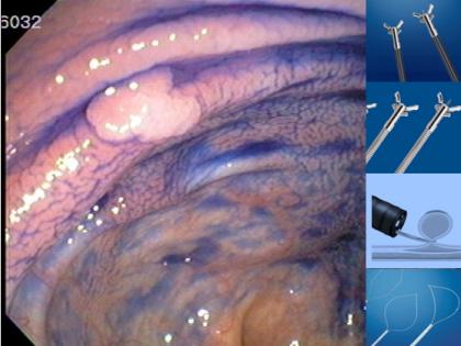 Qual o melhor forma de ressecção para os pólipos subcentimétricos do cólon e reto?