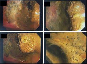 Colonoscopia: Volumoso fecaloma impactado no cólon transverso. Foi realizada infusão lenta de 1000 ml de soro fisiológico morno com amolecimento do fecaloma, permitindo a passagem do aparelho através da área de obstrução e descompressão do cólon direito que também apresentava grande quantidade de resíduos fecais. O local de impactação apresentava sinais de isquemia e necrose da mucosa. O cólon direito apresentava grande quantidade de resíduos fecais aderidos às paredes, impedindo a avaliação da mucosa.