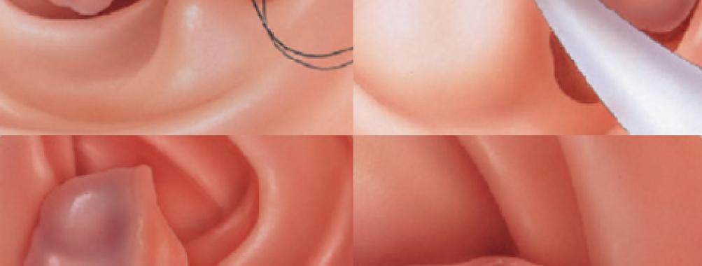 Ressecções endoscópicas