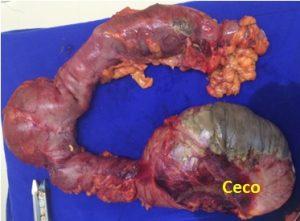Colectomia direita ampliada. Nota-se grande área de necrose no ceco e outra pequena no transverso. Também é possível identificar a área de anastomose da ressecção prévia.