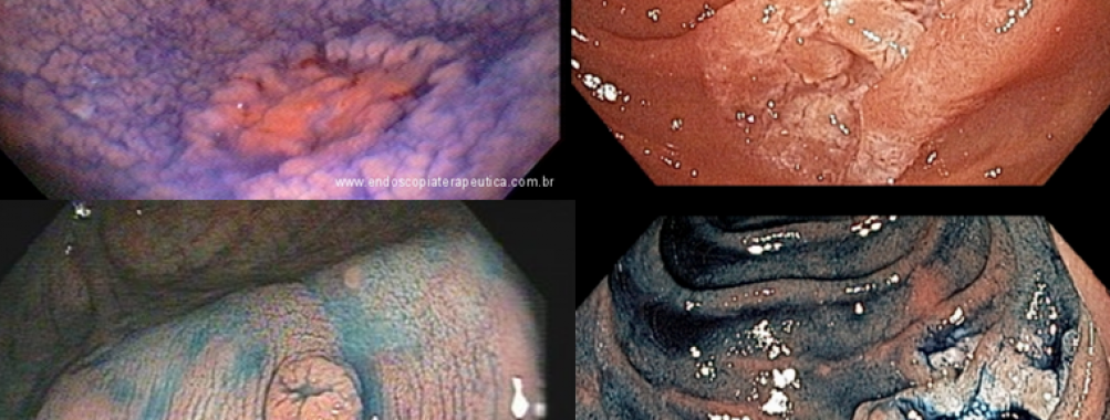 Cromoscopia com corantes