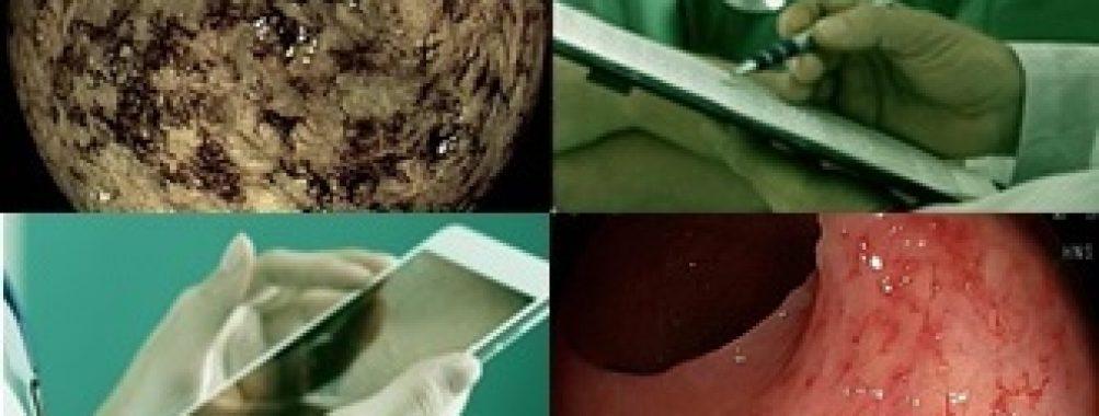 Coloproctopatia actínica crônica – visão prática