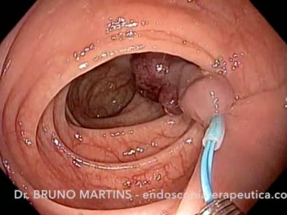 Polipectomia com auxílio de Endoloop