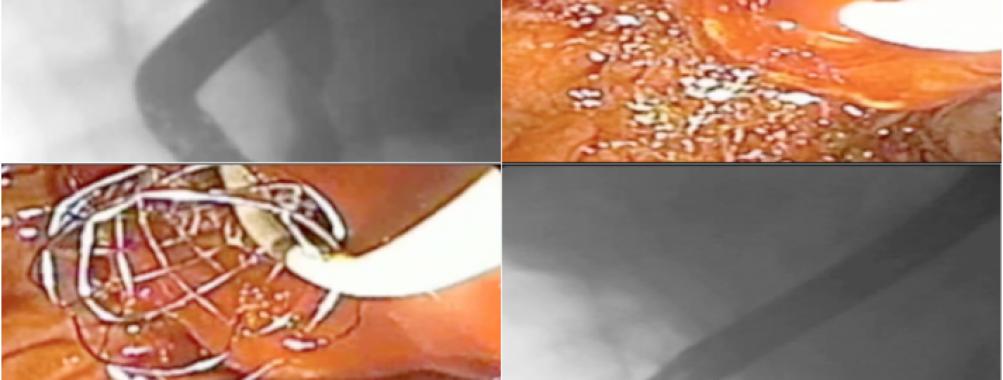 Varizes de colédoco : uma causa rara de hemobilia.