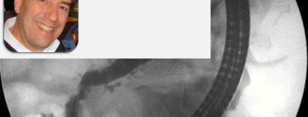 Complicações da pancreatite crônica cursando com dor abdominal – manejo endoscópico