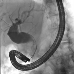 Fluoroscopia: Dilatação da via biliar extra-hepática; tentativa de remoção da prótese com balão sem sucesso.