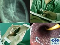 DIRETRIZ – Uso de próteses esofágicas ESGE