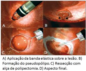 mucosectomia-com-ligadura-elastica
