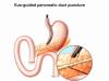 Recanalização guiada por ecoendoscopia de estenose total de anastomose pancreaticojejunal pós duodenopancreatectomia
