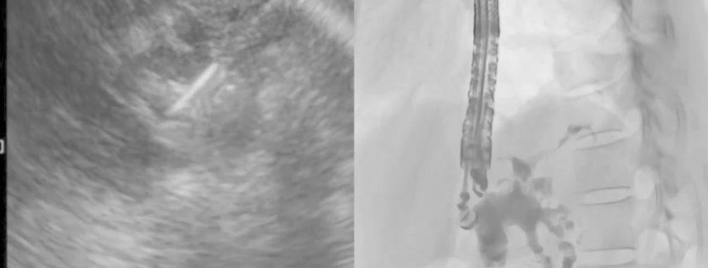 Caso Clínico – Drenagem endoscópica transmural ecoguiada de coleção peripancreática pós operatória