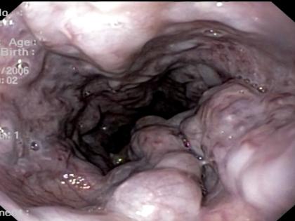 Quiz! Profilaxia de sangramento digestivo varicoso
