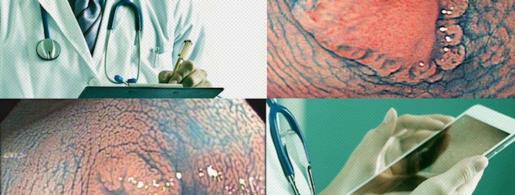 Classificação das neoplasias colorretais precoces segundo Workshop de Paris