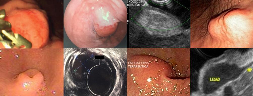 Papel da endoscopia nas lesões subepiteliais do trato gastrointestinal