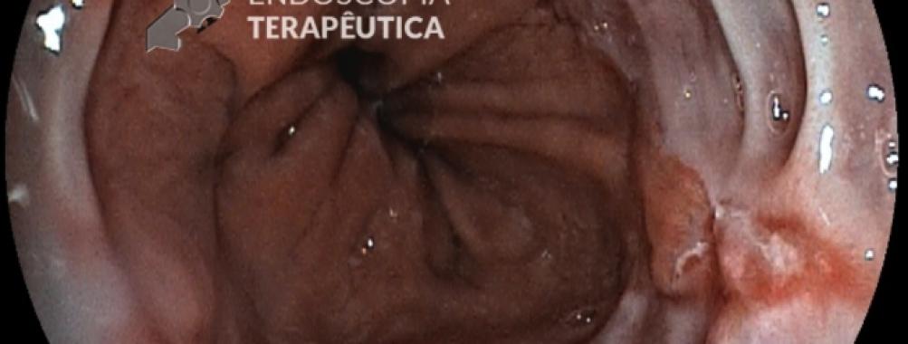 Esofagite péptica – Savary Miller