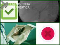 Em relação ao papel da endoscopia na colangite esclerosante primária (CEP), pode-se afirmar: