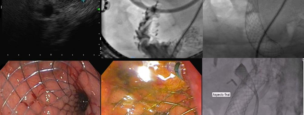 Passagem de prótese biliar em paciente com prótese duodenal prévia