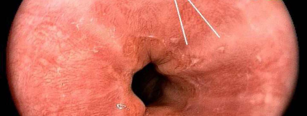 Esofagite péptica – Sonnemberg