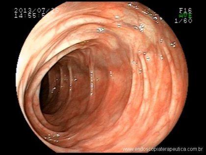 Biópsias seriadas em colonoscopia: quando e como fazer?