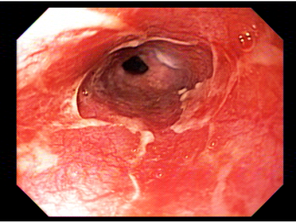 QUIZ ! Sintomas esofágicos pós transplante .